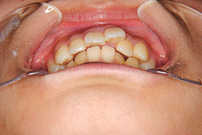 小中高生の本格矯正治療例 治療例1