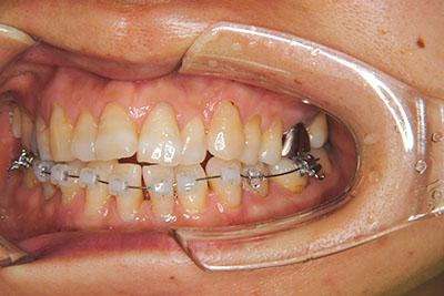 治療例1 上顎前突と叢生