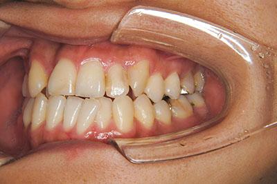 治療例2 受け口(反対咬合)と叢生