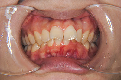 治療例3 出っ歯