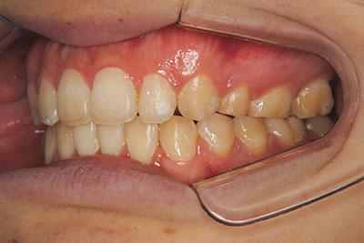 治療例4 開咬と前突(出っ歯)