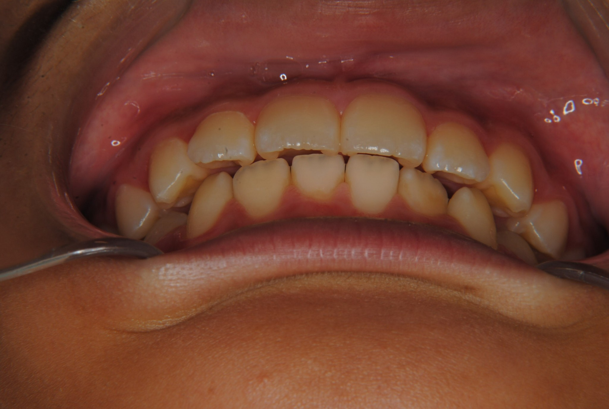 下の前歯のデコボコを治したいと来院された8歳の男の子