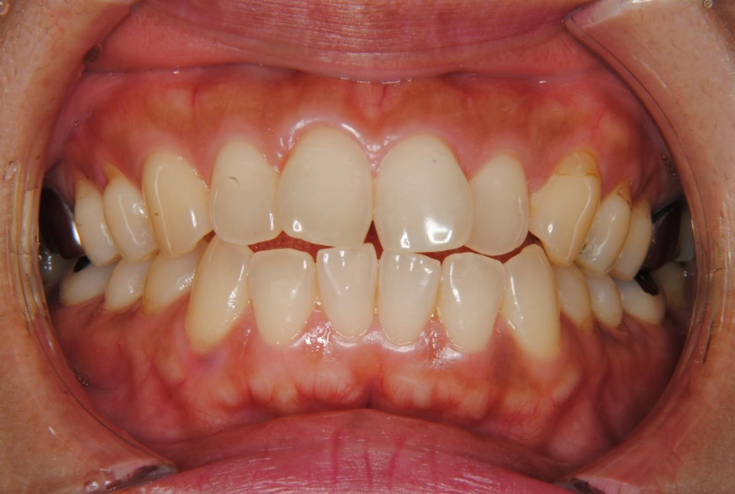 上下前歯の突出を抜歯により治療した40代女性