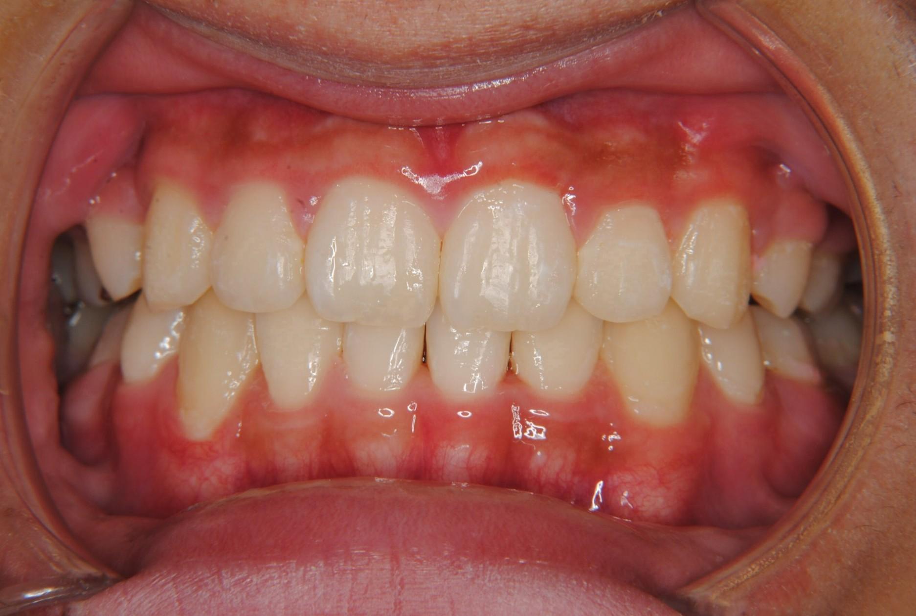 8歳の男子、下左右5番目の乳歯の下の永久歯がなく、上の小臼歯抜歯で治りました。